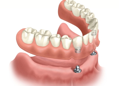 denture.2-impant supported